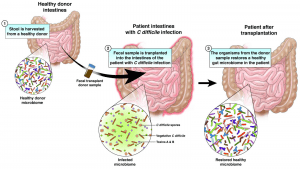 Intestine Diagram, C Difficile, FMT, Health